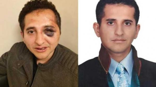 President Erdogan's security details tortured lawyer Sertug Surenoglu